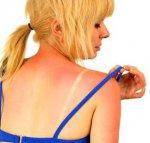 Первая помощь при солнечных ожогах